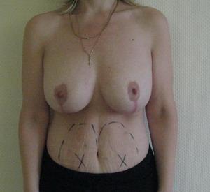 С помощью каких лифчиков можно увеличить объем груди