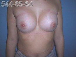 Операция по увеличению груди - Фото ПОСЛЕ операции