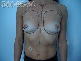 Увеличение молочных желез - Фото ДО операции