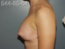 Увеличение груди - Фото через неделю ПОСЛЕ операции