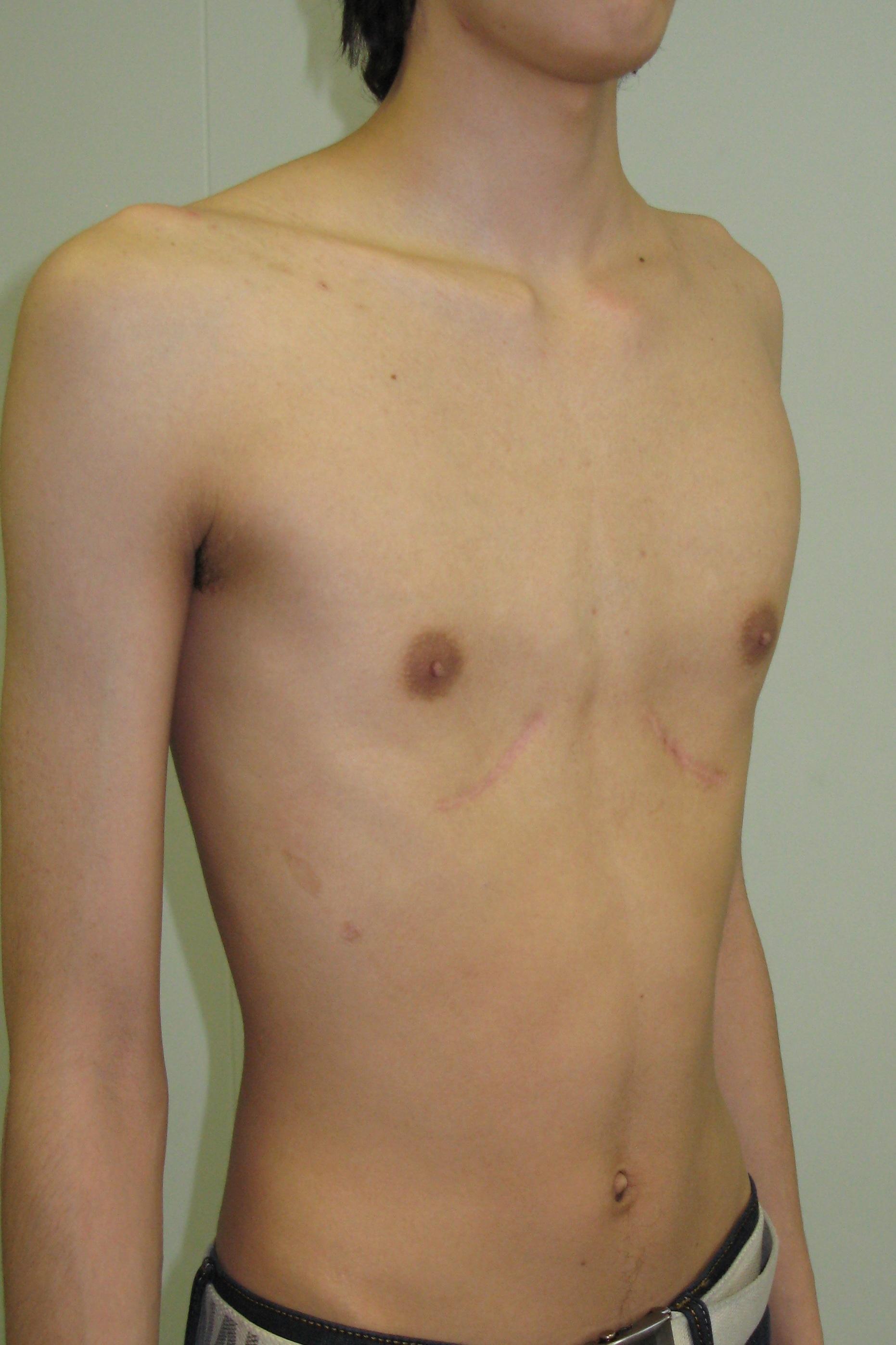 Фото впалая женская грудь 5 фотография