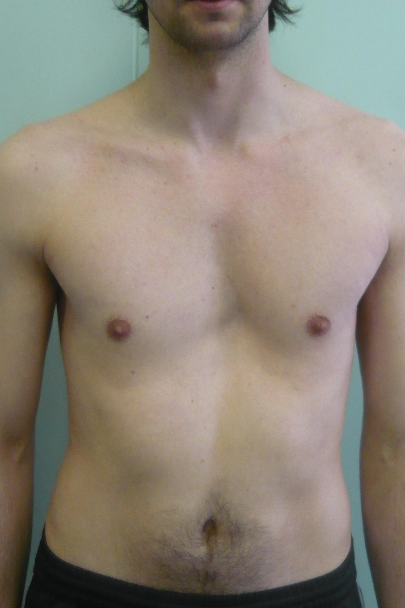 Фото впалая женская грудь 8 фотография